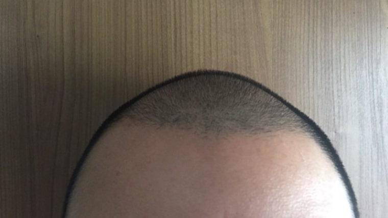 坊主 薄毛